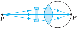 Corrected myopic eye