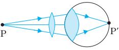 Corrected Hypermetropic eye